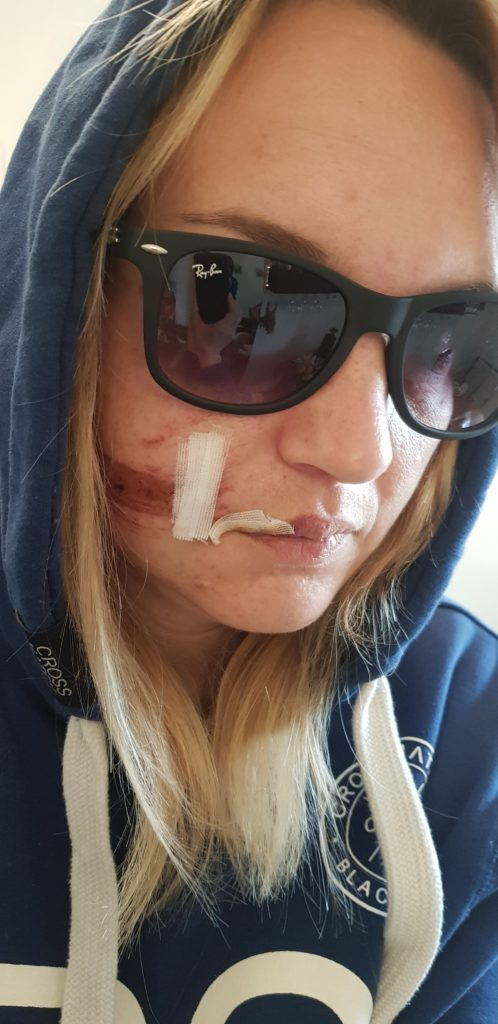 Pferdehuf trifft Gesicht: nach dem Unfall ging es mir nicht gut und ich hatte Angst vor meinem Pferd